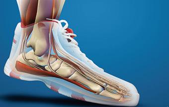 足跟痛未必是长骨刺 更可能是这种病